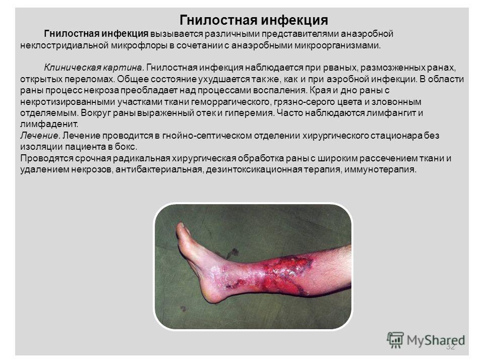 Гнилостная инфекция Гнилостная инфекция вызывается различными представителями анаэробной неклостридиальной микрофлоры в сочетании с анаэробными микроорганизмами. Клиническая картина. Гнилостная инфекция наблюдается при рваных, размозженных ранах, отк