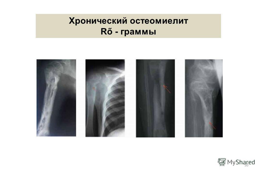 50 Хронический остеомиелит Rő - граммы