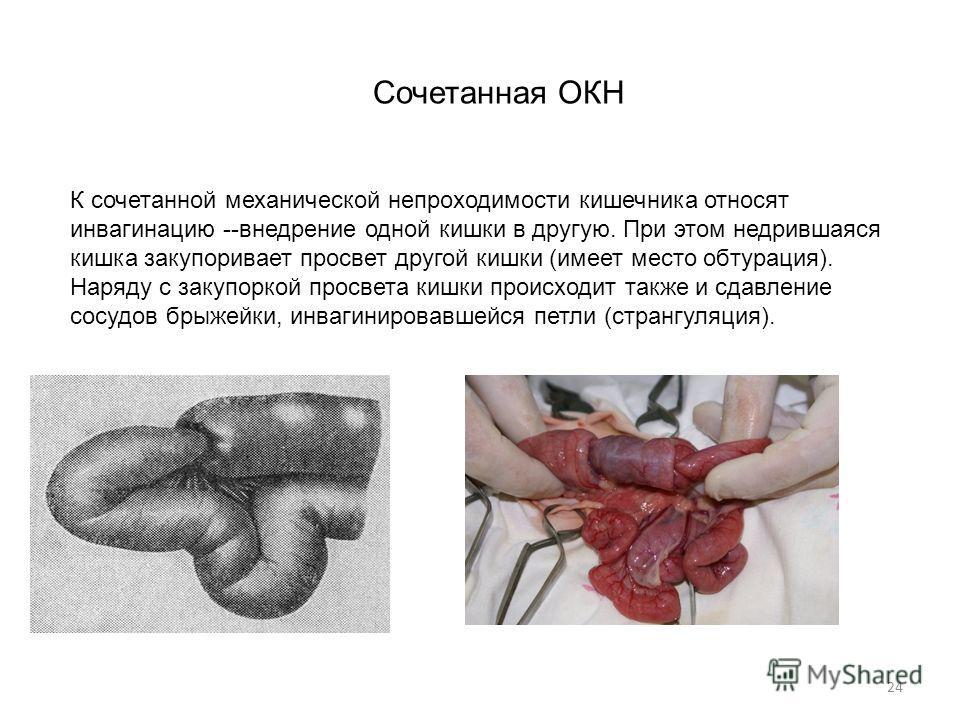 24 К сочетанной механической непроходимости кишечника относят инвагинацию --внедрение одной кишки в другую. При этом недрившаяся кишка закупоривает просвет другой кишки (имеет место обтурация). Наряду с закупоркой просвета кишки происходит также и сд