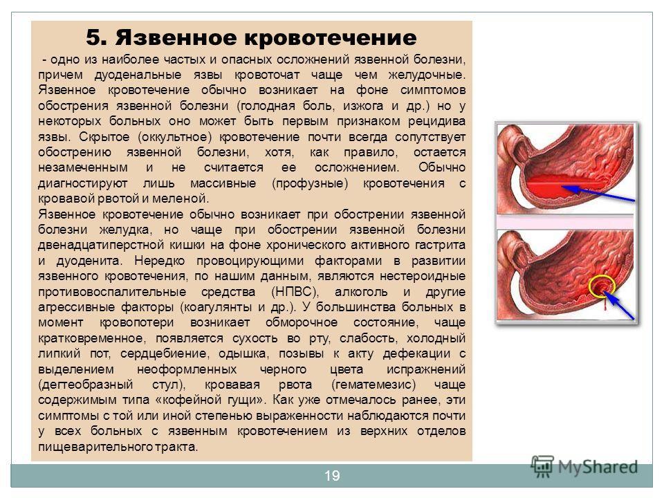 5. Язвенное кровотечение - одно из наиболее частых и опасных осложнений язвенной болезни, причем дуоденальные язвы кровоточат чаще чем желудочные. Язвенное кровотечение обычно возникает на фоне симптомов обострения язвенной болезни (голодная боль, из