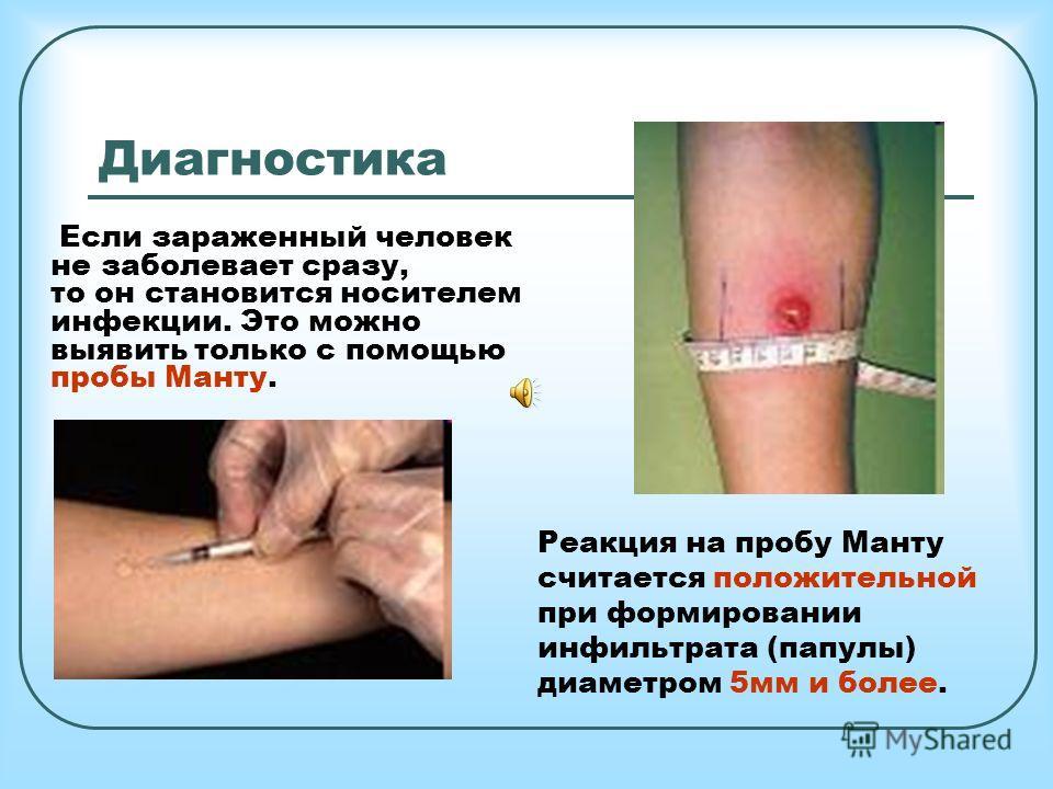 Диагностика Если зараженный человек не заболевает сразу, то он становится носителем инфекции. Это можно выявить только с помощью пробы Манту. Реакция на пробу Манту считается положительной при формировании инфильтрата (папулы) диаметром 5 мм и более.