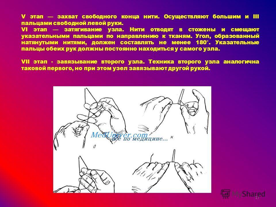 V этап захват свободного конца нити. Осуществляют большим и III пальцами свободной левой руки. VI этап затягивание узла. Нити отводят в стожены и смещают указательными пальцами по направлению к тканям. Угол, образованный натянутыми нитями, должен сос