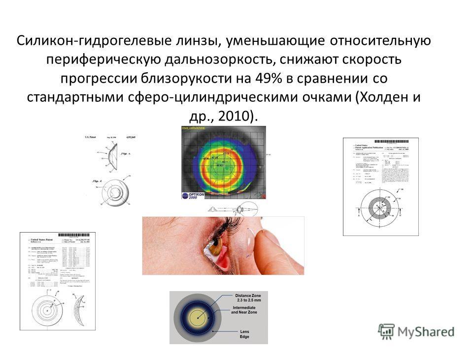 Силикон-гидрогелевые линзы, уменьшающие относительную периферическую дальнозоркость, снижают скорость прогрессии близорукости на 49% в сравнении со стандартными сферо-цилиндрическими очками (Холден и др., 2010).