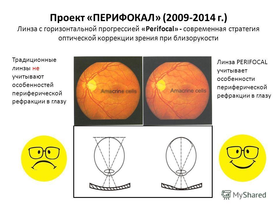 Традиционные линзы не учитывают особенностей периферической рефракции в глазу Линза PERIFOCAL учитывает особенности периферической рефракции в глазу Проект «ПЕРИФОКАЛ» (2009-2014 г.) Линза с горизонтальной прогрессией «Perifocal» - современная страте