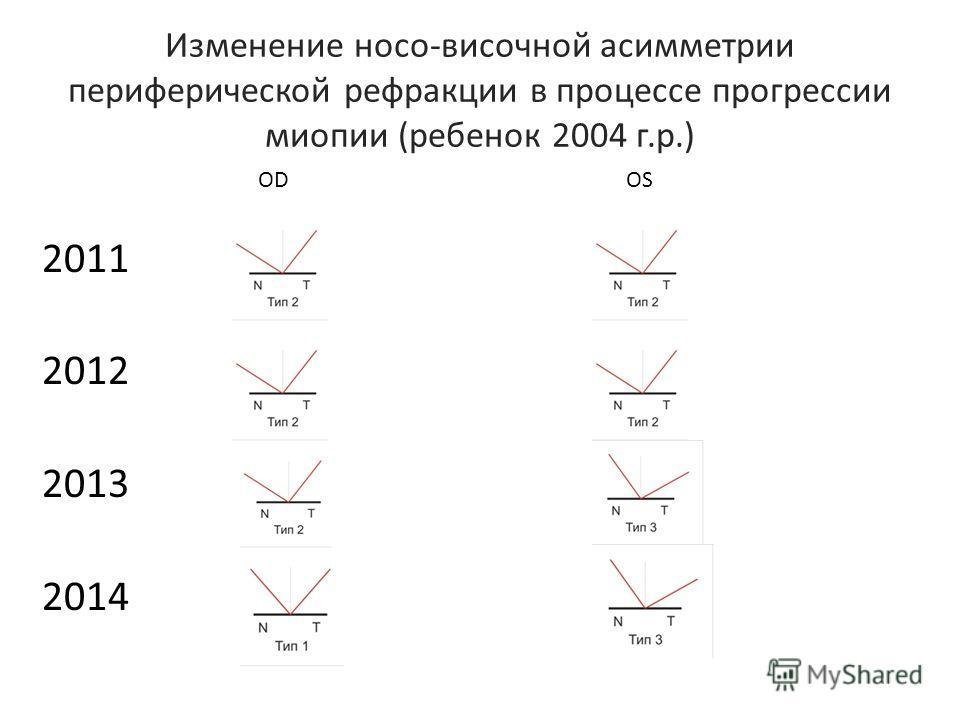 Изменение носо-височной асимметрии периферической рефракции в процессе прогрессии миопии (ребенок 2004 г.р.) 2011 2012 2013 2014 ODOS