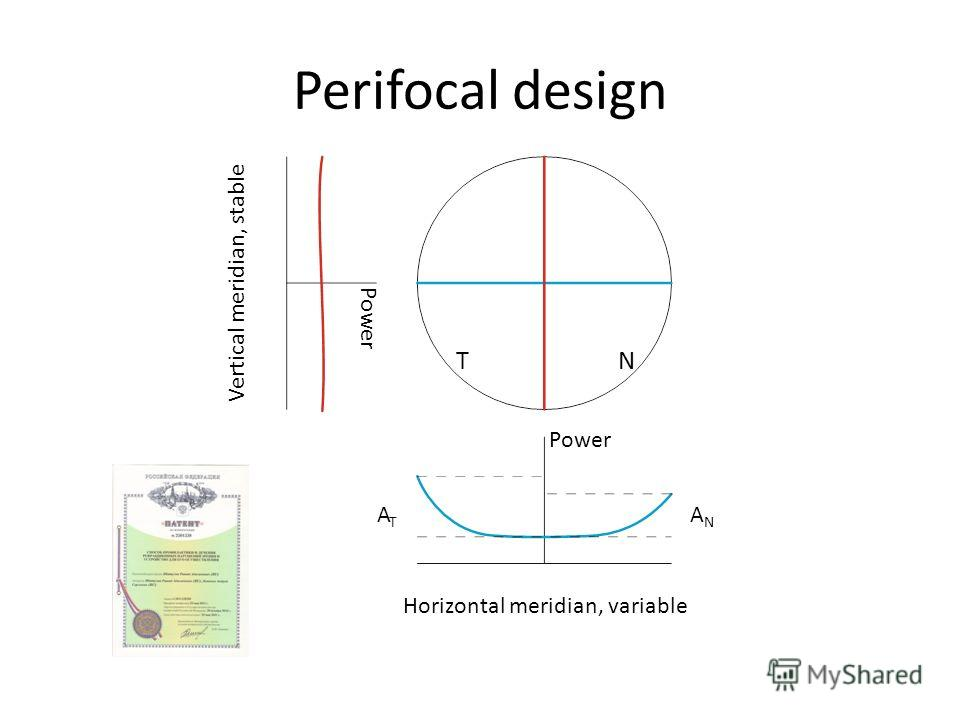 Perifocal design Horizontal meridian, variable Vertical meridian, stable TN ANAN ATAT Power