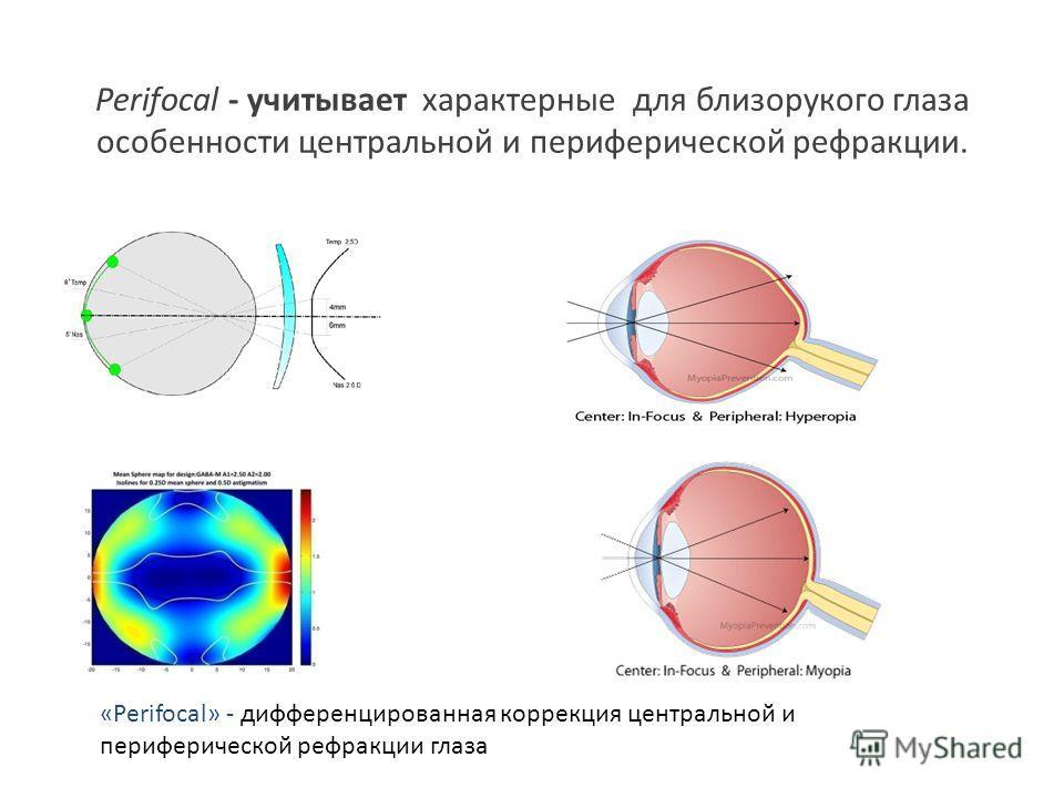 Perifocal - учитывает характерные для близорукого глаза особенности центральной и периферической рефракции. «Perifocal» - дифференцированная коррекция центральной и периферической рефракции глаза