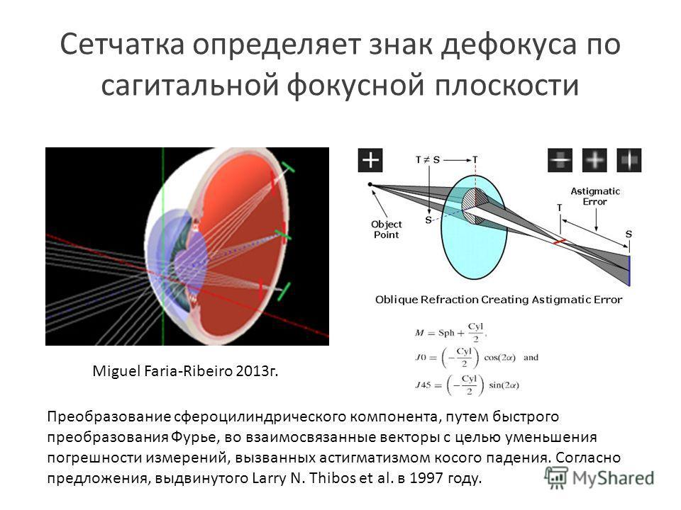 Сетчатка определяет знак де фокуса по сагитальной фокусной плоскости Преобразование сфероцилиндрического компонента, путем быстрого преобразования Фурье, во взаимосвязанные векторы с целью уменьшения погрешности измерений, вызванных астигматизмом кос