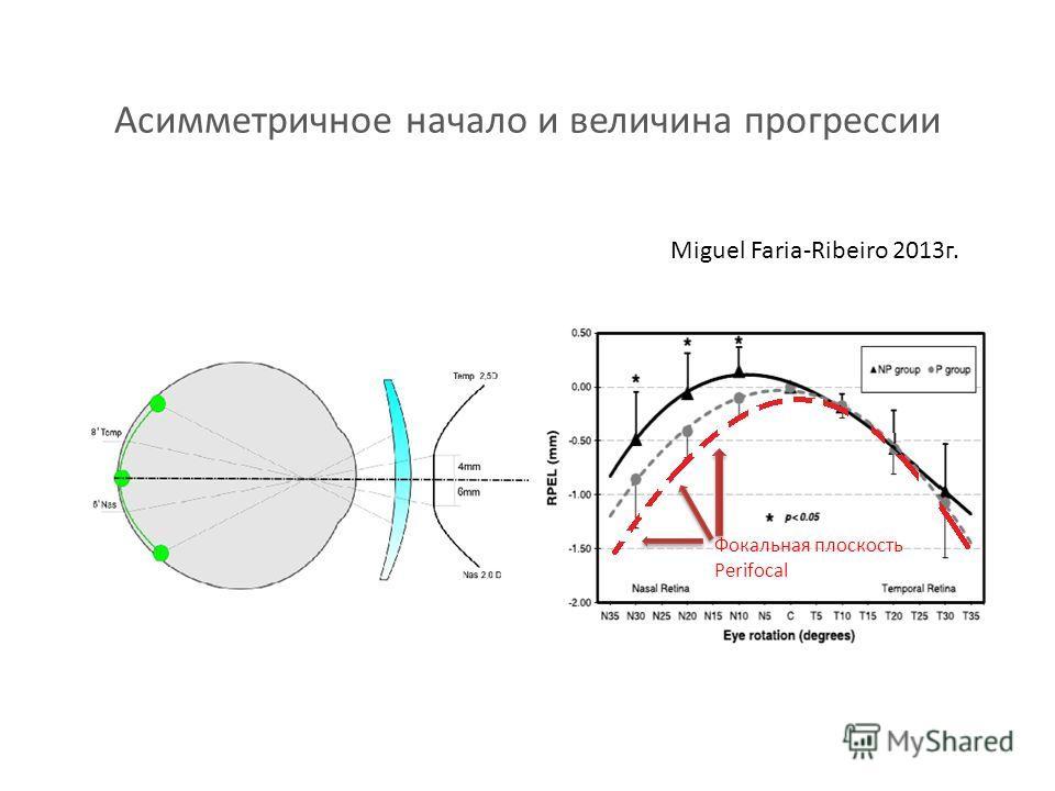 Асимметричное начало и величина прогрессии Miguel Faria-Ribeiro 2013 г. Фокальная плоскость Perifocal
