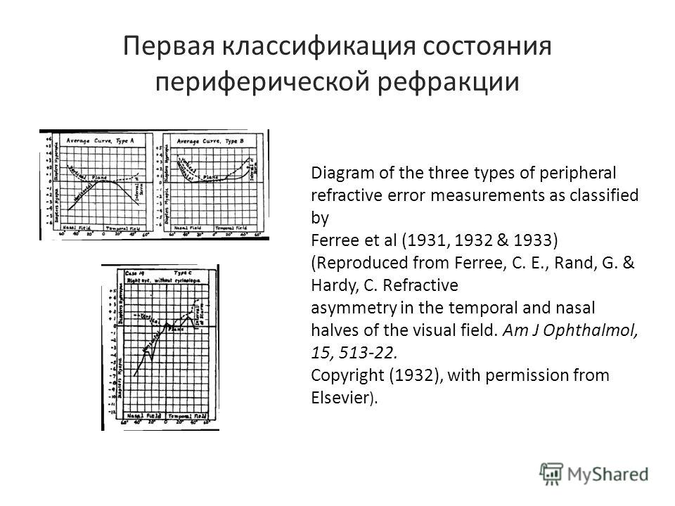 Первая классификация состояния периферической рефракции Diagram of the three types of peripheral refractive error measurements as classified by Ferree et al (1931, 1932 & 1933) (Reproduced from Ferree, C. E., Rand, G. & Hardy, C. Refractive asymmetry