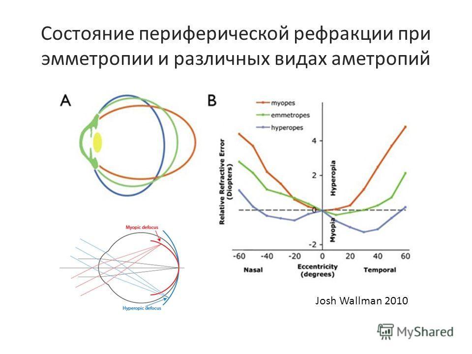 Состояние периферической рефракции при эмметропии и различных видах аметропий Josh Wallman 2010