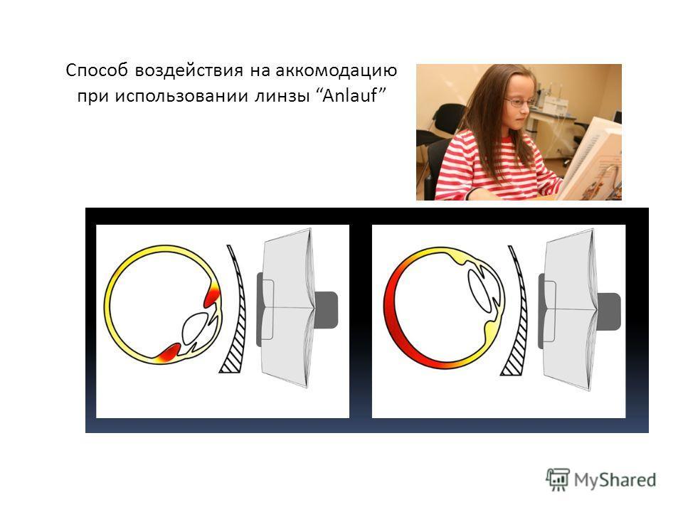 Способ воздействия на аккомодацию при использовании линзы Anlauf