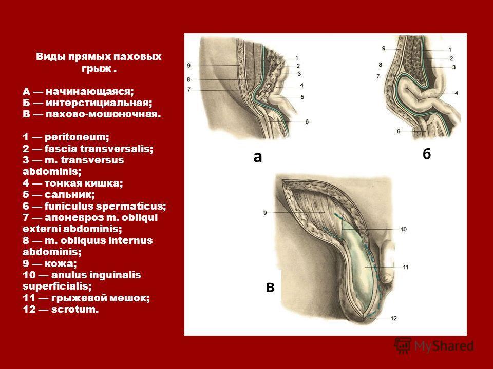 Виды прямых паховых грыж. А начинающаяся; Б интерстициальная; В пахово-мошоночная. 1 peritoneum; 2 fascia transversalis; 3 m. transversus abdominis; 4 тонкая кишка; 5 сальник; 6 funiculus spermaticus; 7 апоневроз m. obliqui externi abdominis; 8 m. ob
