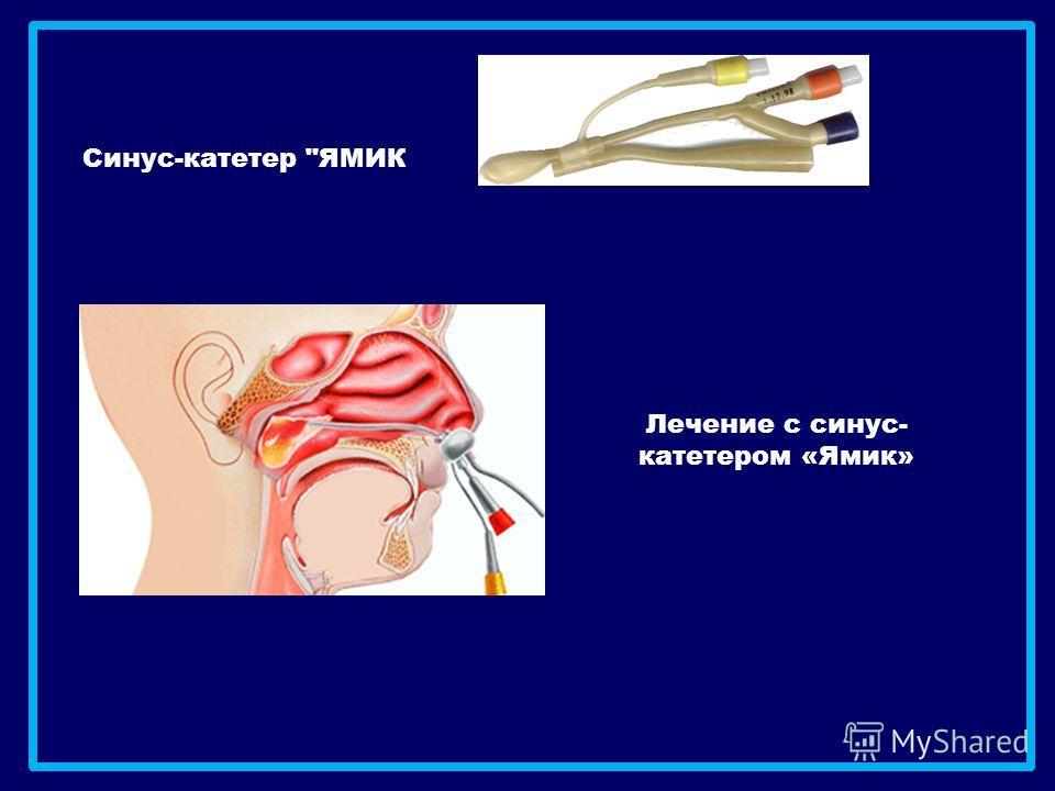 Лечение с синус- катетером «Ямик» Синус-катетер ЯМИК