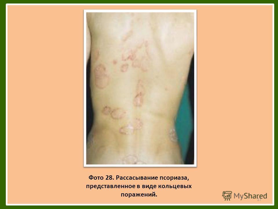 Фото 28. Рассасывание псориаза, представленное в виде кольцевых поражений. 17
