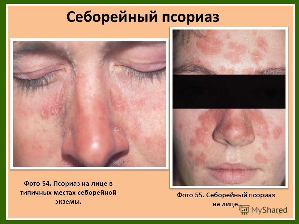 Себорейный псориаз Фото 54. Псориаз на лице в типичных местах себорейной экземы. Фото 55. Себорейный псориаз на лице. 38
