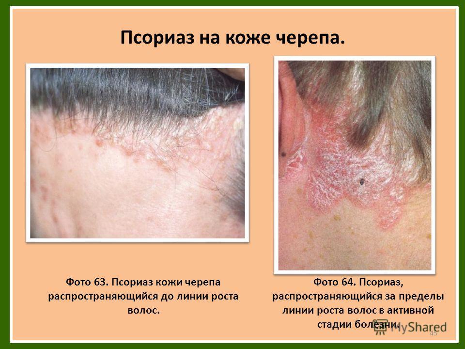 Псориаз на коже черепа. Фото 63. Псориаз кожи черепа распространяющийся до линии роста волос. Фото 64. Псориаз, распространяющийся за пределы линии роста волос в активной стадии болезни. 45