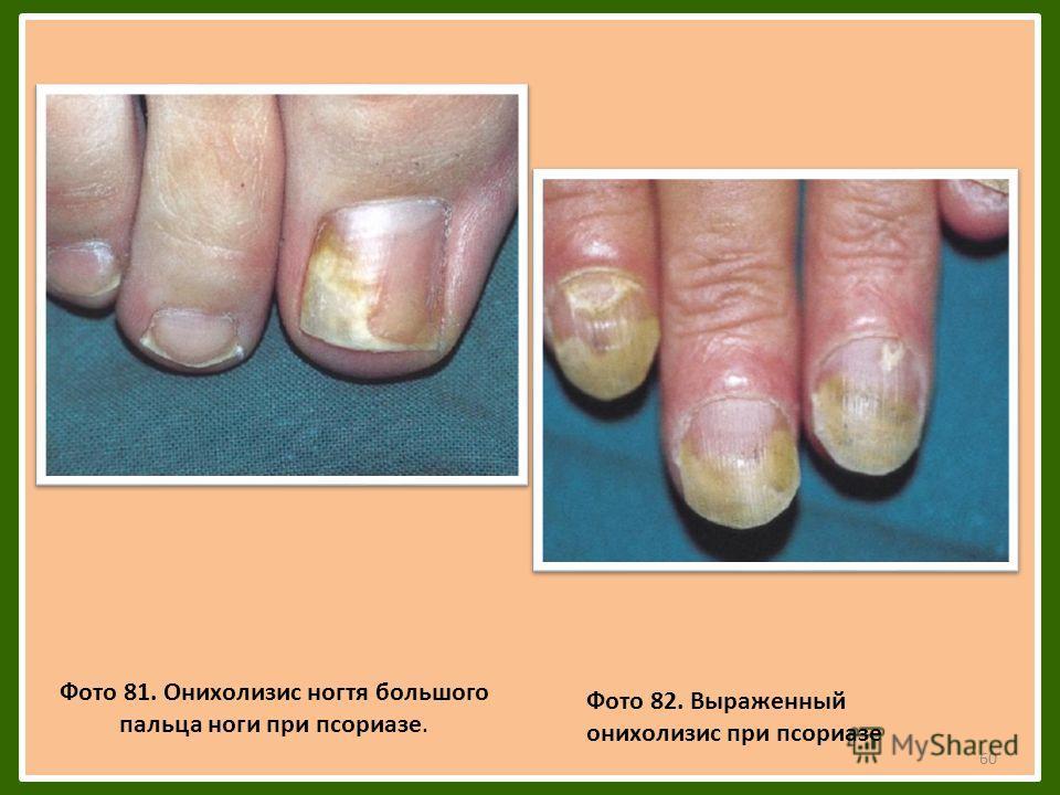 60 Фото 81. Онихолизис ногтя большого пальца ноги при псориазе. Фото 82. Выраженный онихолизис при псориазе