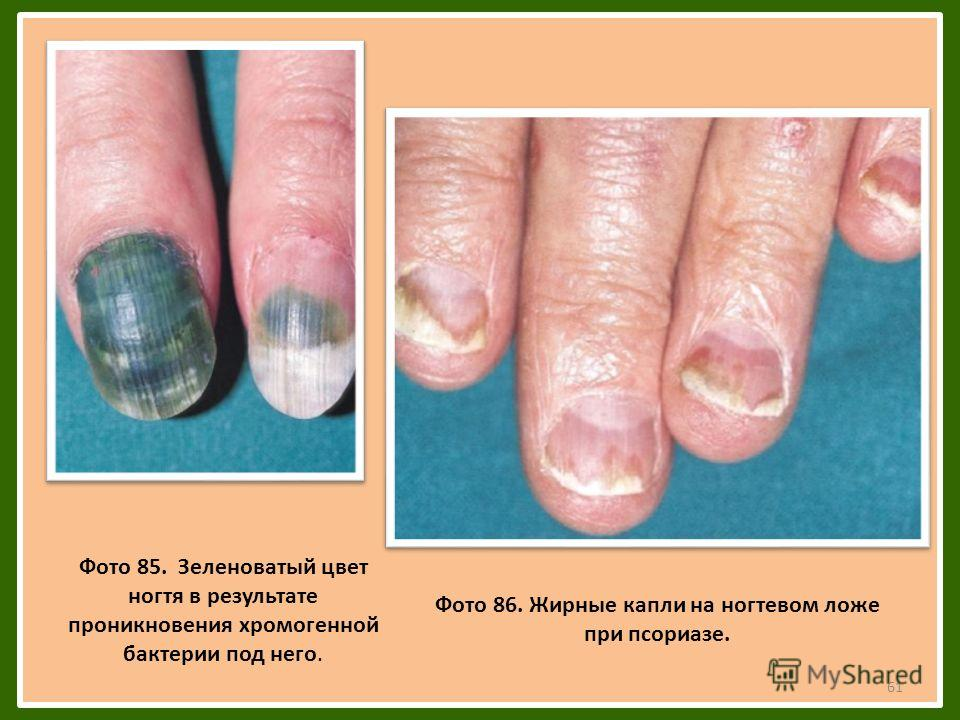 61 Фото 85. Зеленоватый цвет ногтя в результате проникновения хромогенной бактерии под него. Фото 86. Жирные капли на ногтевом ложе при псориазе.