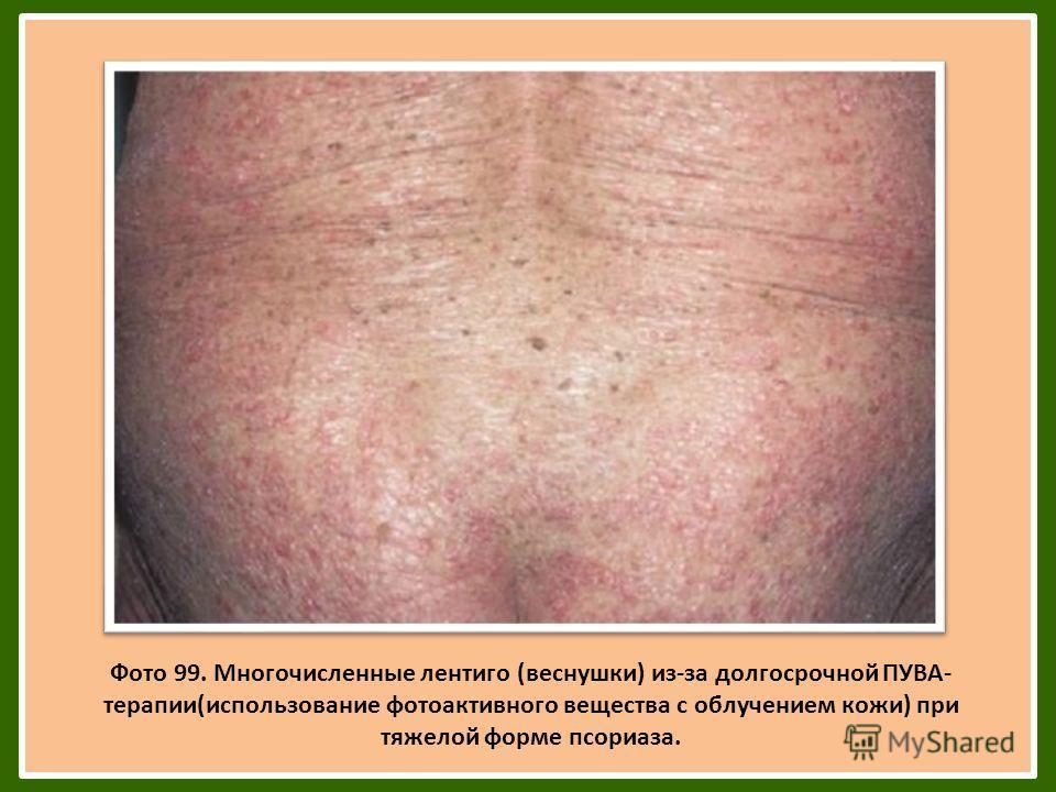 71 Фото 99. Многочисленные лентиго (веснушки) из-за долгосрочной ПУВА- терапии(использование фотоактивного вещества с облучением кожи) при тяжелой форме псориаза.