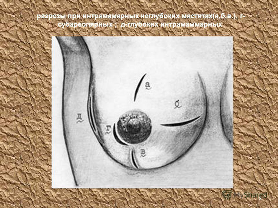 7 Классификация по течению заболевания 1. серозный мастит (ухудшается общее самочувствие, поднимается температура, происходит задержка молока в груди ) 2. инфильтративный мастит (появляется скопление в тканях молочной железы, клеточных элементов с пр