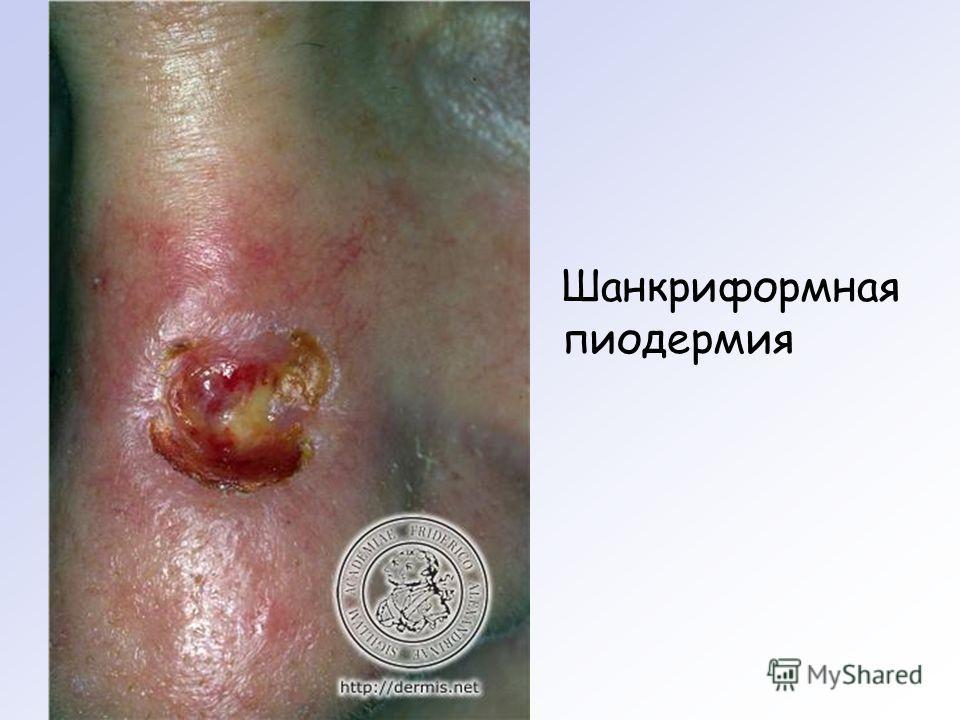Шанкриформная пиодермия