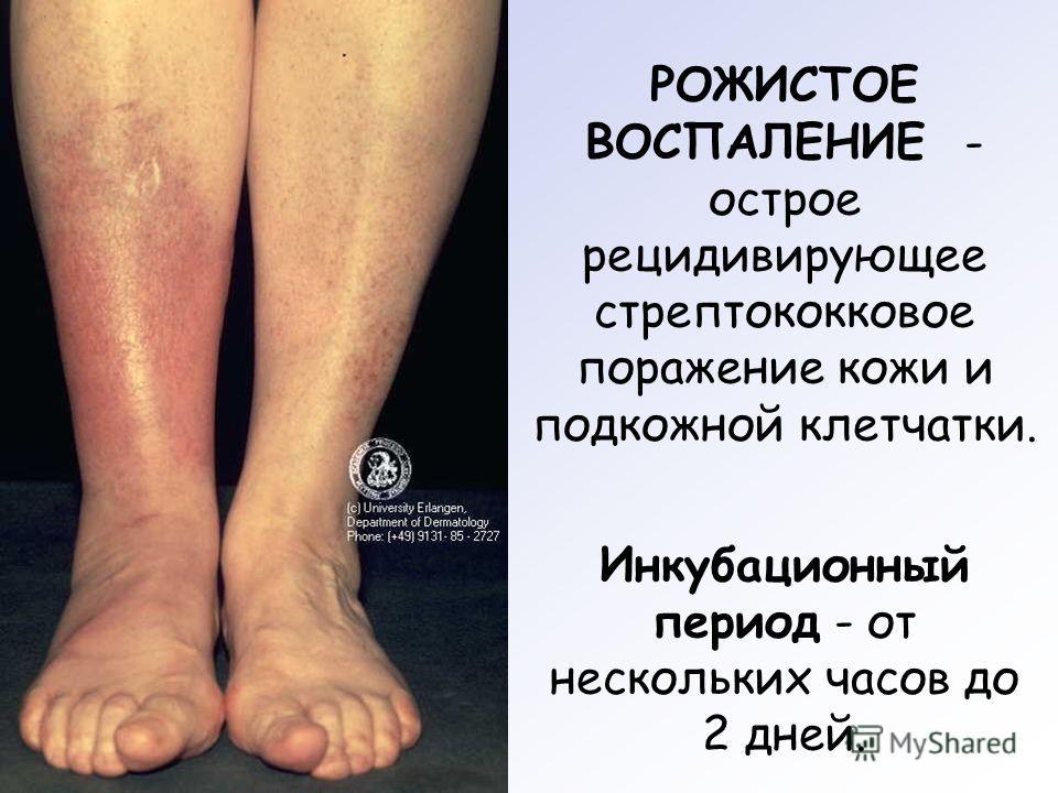Рожистая ноги лечение в домашних условиях