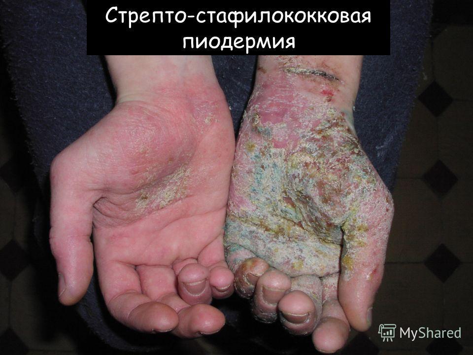 Стрепто-стафилококковая пиодермия