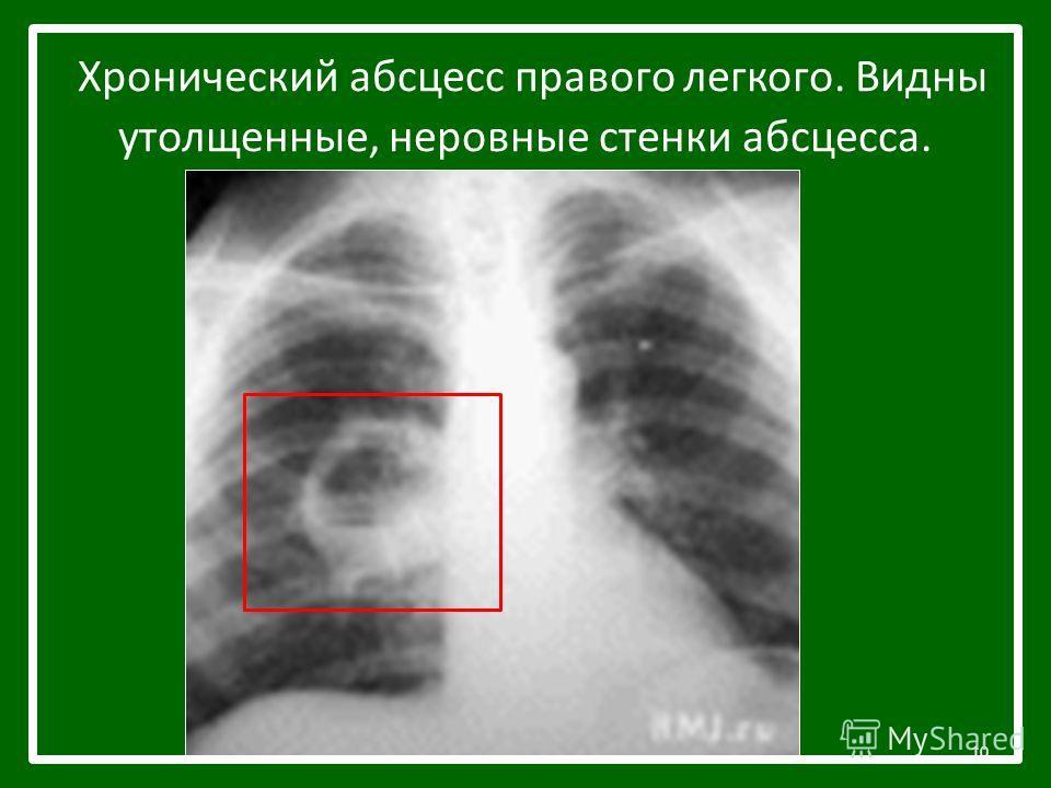 Хронический абсцесс правого легкого. Видны утолщенные, неровные стенки абсцесса. 10