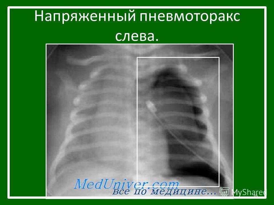 Напряженный пневмоторакс слева. 16