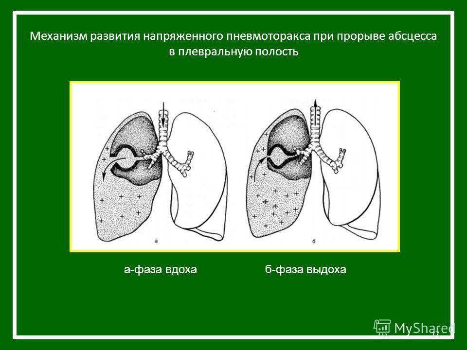 Механизм развития напряженного пневмоторакса при прорыве абсцесса в плевральную полость 17 а-фаза вдоха б-фаза выдоха