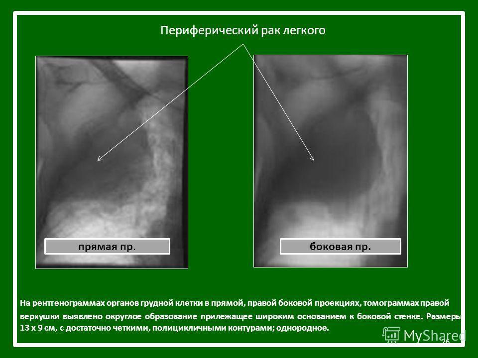 Периферический рак легкого На рентгенограммах органов грудной клетки в прямой, правой боковой проекциях, томограммах правой верхушки выявлено округлое образование прилежащее широким основанием к боковой стенке. Размеры 13 х 9 см, с достаточно четкими
