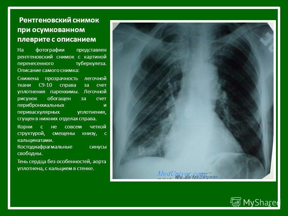 Рентгеновский снимок при осумкованном плеврите с описанием На фотографии представлен рентгеновский снимок с картиной перенесенного туберкулеза. Описание самого снимка: Снижена прозрачность легочной ткани С9-10 справа за счет уплотнения паренхимы. Лег