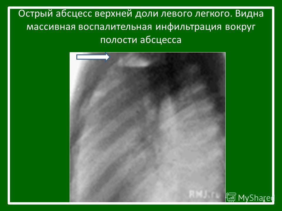 Острый абсцесс верхней доли левого легкого. Видна массивная воспалительная инфильтрация вокруг полости абсцесса 8