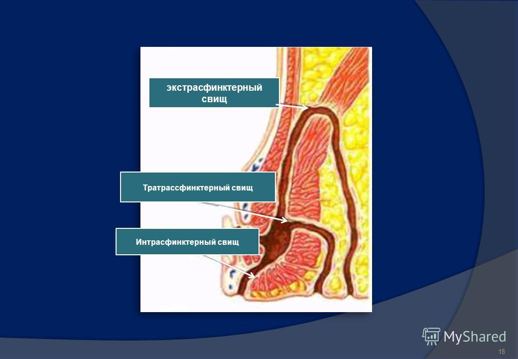Классификация свищей В зависимости от расположения свищевого хода по отношению к наружному сфинктеру заднего прохода выделяют интра-, транс- и экстрасфинктерный свищи прямой кишки. - Самые простые свищи это интрасфинктерные свищи. Свищевой ход, как п