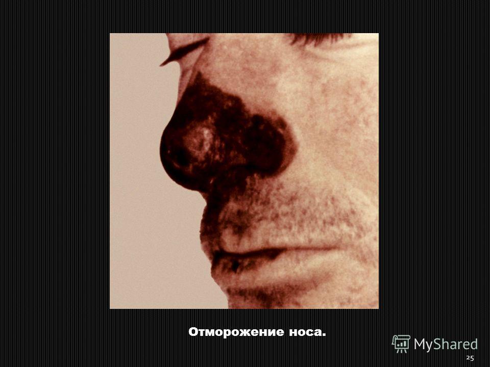 Отморожение носа. 25