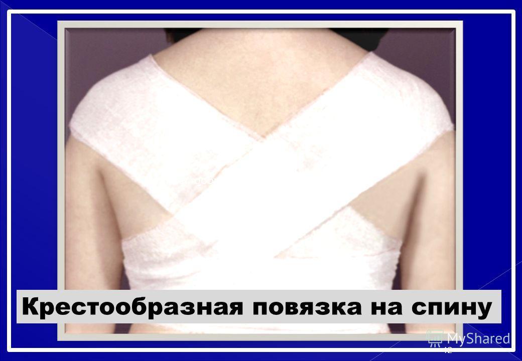 Крестообразная повязка на спину 12