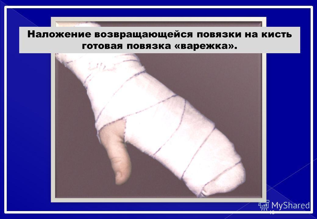 Наложение возвращающейся повязки на кисть готовая повязка «варежка». 13