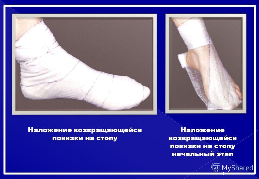 Наложение возвращающейся повязки на стопу Наложение возвращающейся повязки на стопу начальный этап 14
