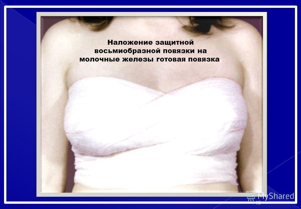 Наложение защитной восьмиобразной повязки на молочные железы готовая повязка. 15
