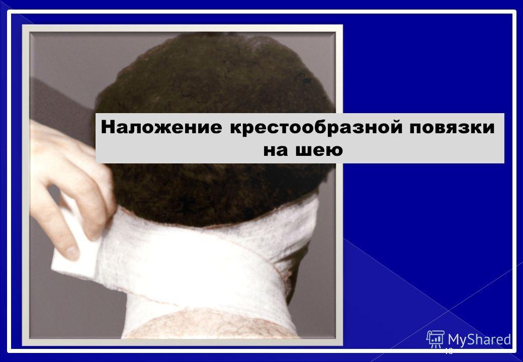 Наложение крестообразной повязки на шею 18