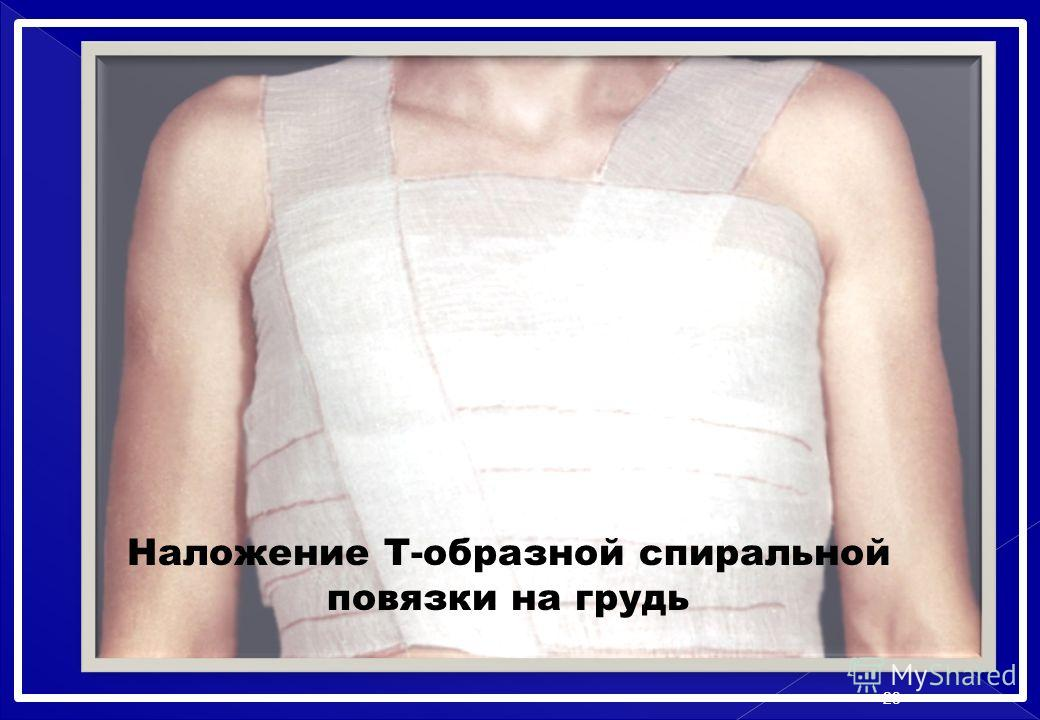Наложение Т-образной спиральной повязки на грудь 23