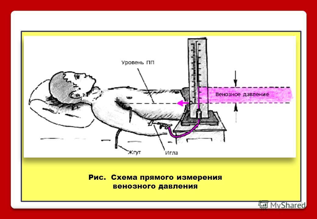 Рис. Схема прямого измерения венозного давления 3