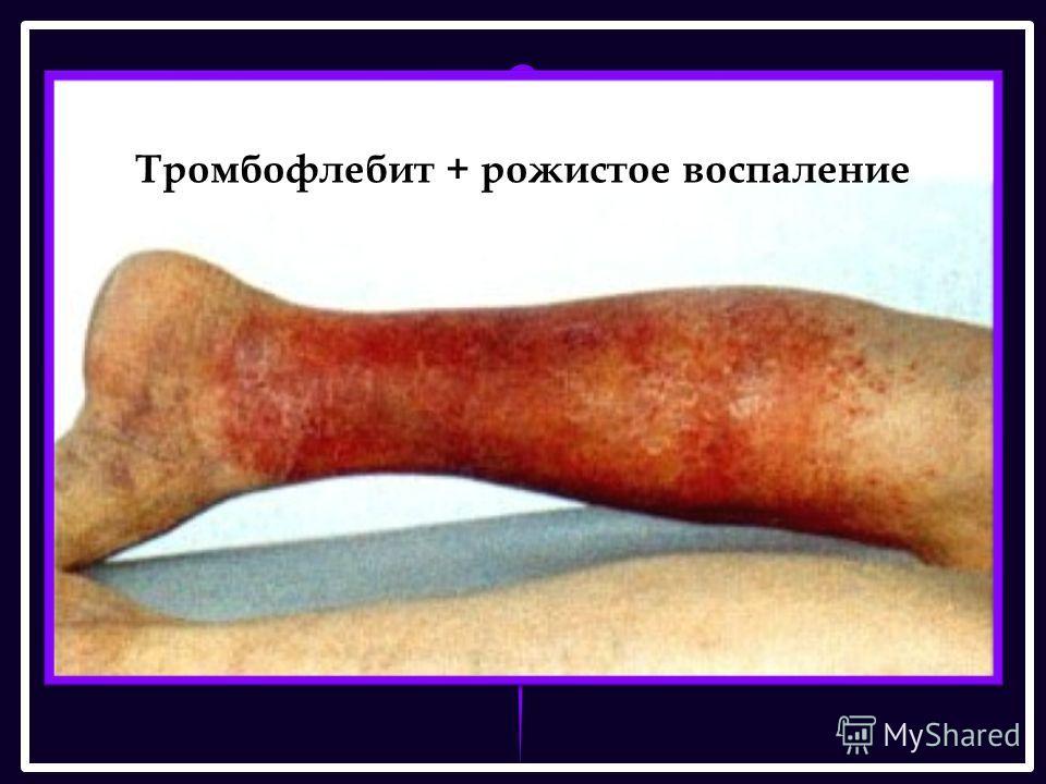 Тромбофлебит + рожистое воспаление