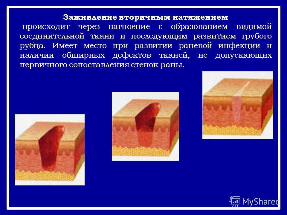 Заживление вторичным натяжением происходит через нагноение с образованием видимой соединительной ткани и последующим развитием грубого рубца. Имеет место при развитии раневой инфекции и наличии обширных дефектов тканей, не допускающих первичного сопо