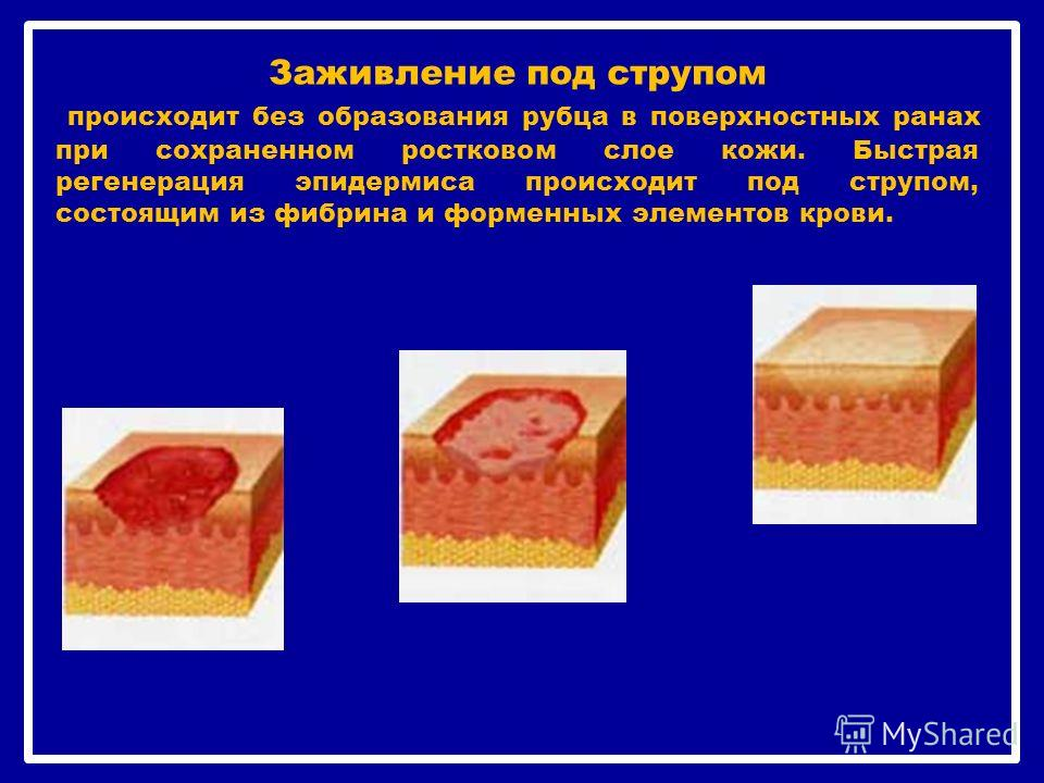 Заживление под струпом происходит без образования рубца в поверхностных ранах при сохраненном ростковом слое кожи. Быстрая регенерация эпидермиса происходит под струпом, состоящим из фибрина и форменных элементов крови.