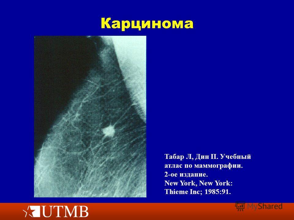 Карцинома Табар Л, Дин П. Учебный атлас по маммографии. 2-ое издание. New York, New York: Thieme Inc; 1985:91.