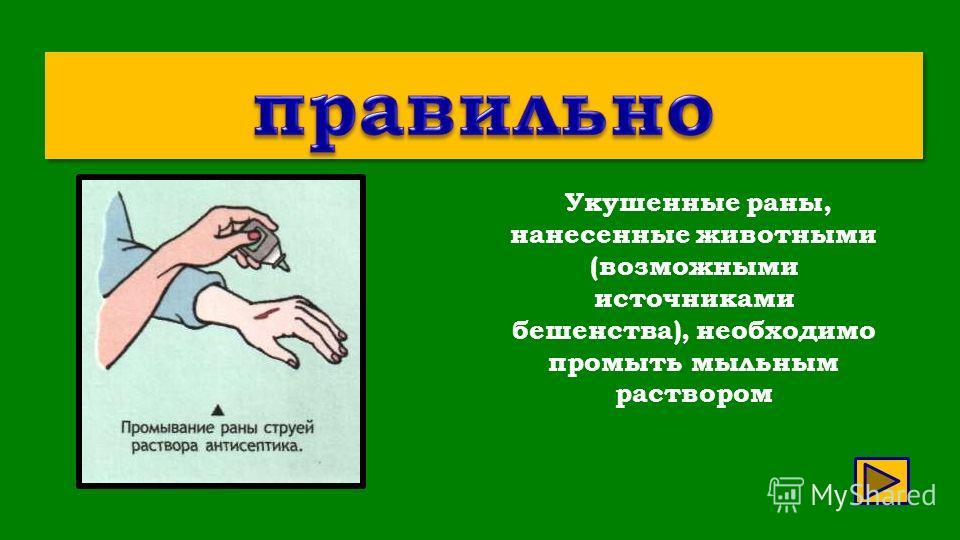 Укушенные раны, нанесенные животными (возможными источниками бешенства), необходимо промыть мыльным раствором