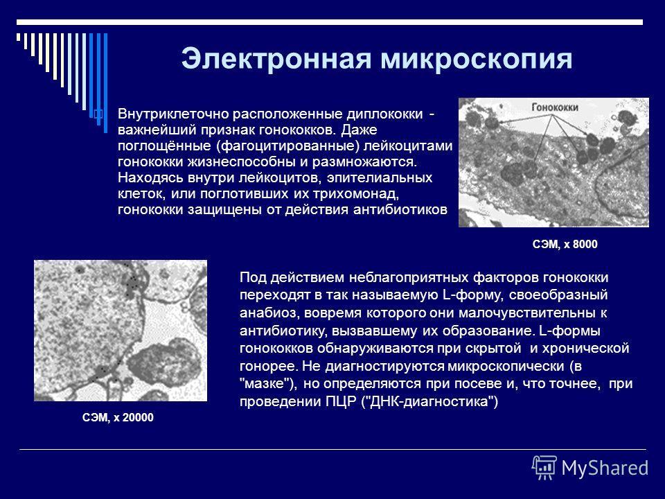 Электронная микроскопия Внутриклеточно расположенные диплококки - важнейший признак гонококков. Даже поглощённые (фагоцитированные) лейкоцитами гонококки жизнеспособны и размножаются. Находясь внутри лейкоцитов, эпителиальных клеток, или поглотивших