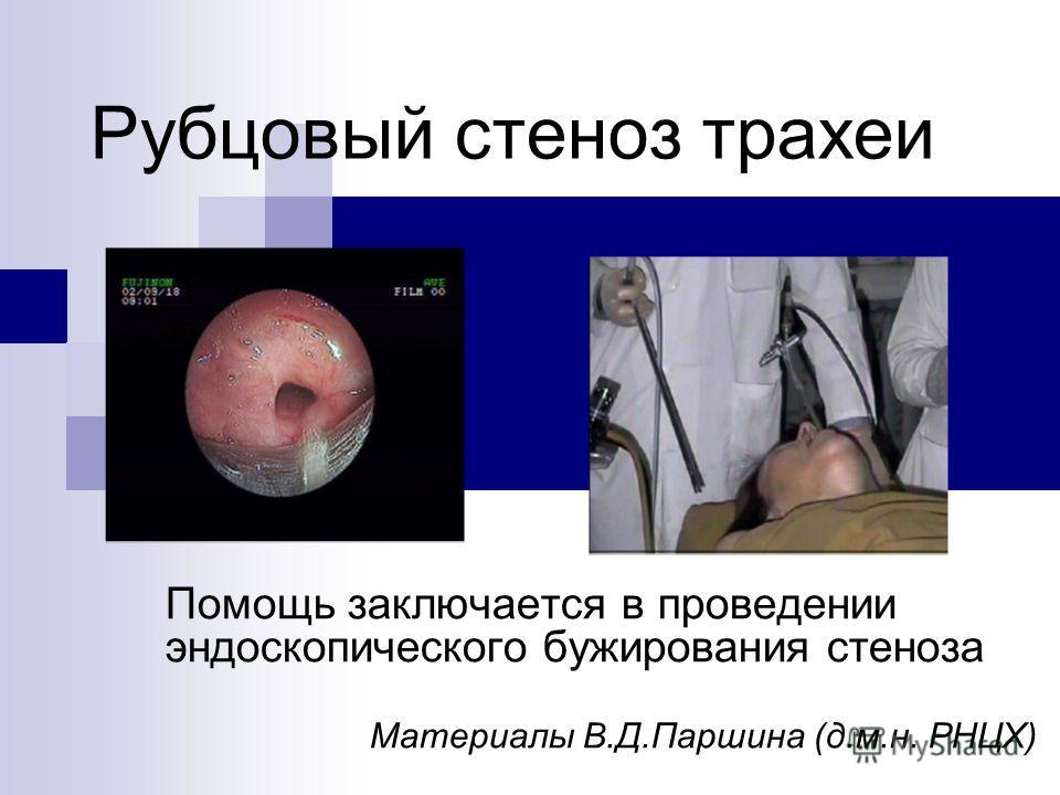 Помощь заключается в проведении эндоскопического бужирования стеноза Материалы В.Д.Паршина (д.м.н. РНЦХ) Рубцовый стеноз трахеи